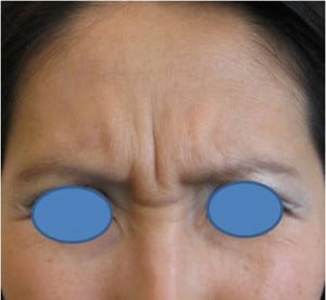 Botox-to-Frown-Lines-Before