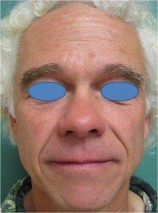 IPL Fotofacial for sun-damaged skin after