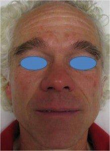 IPL Fotofacial for sun-damaged skin before
