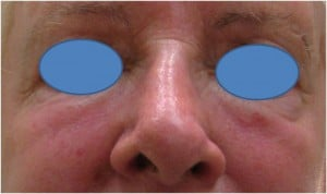 Juvederm-Filler-to-the-undereye-hollows-After