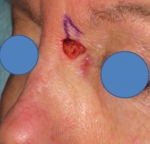 L-nasal-root-Mohs-defect