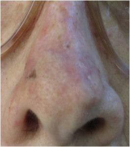 Nose-dorsum-3-week-followup