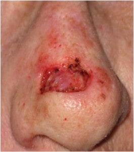 Nose-dorsum-Mohs-defect